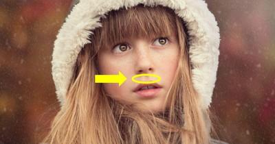 Daher kommt das Grübchen zwischen Nase und Mund