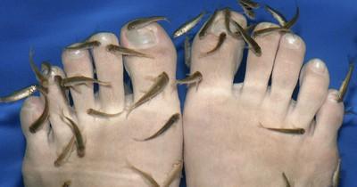 Nach Fisch-Pediküre: Fünf Zehen müssen amputiert werden