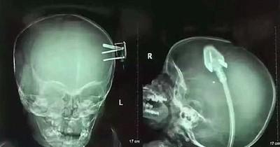 Ein Röntgenbild, das selbst Ärzte verblüfft