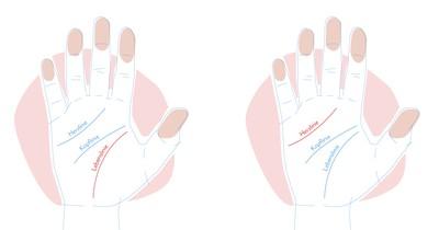 Was bedeuten die Linien in deinen Handflächen?