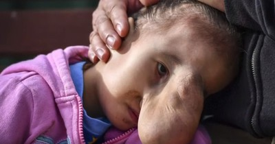 """Mädchen wurde als """"Monster"""" gemobbt - doch eine Operation ändert ihr Leben"""