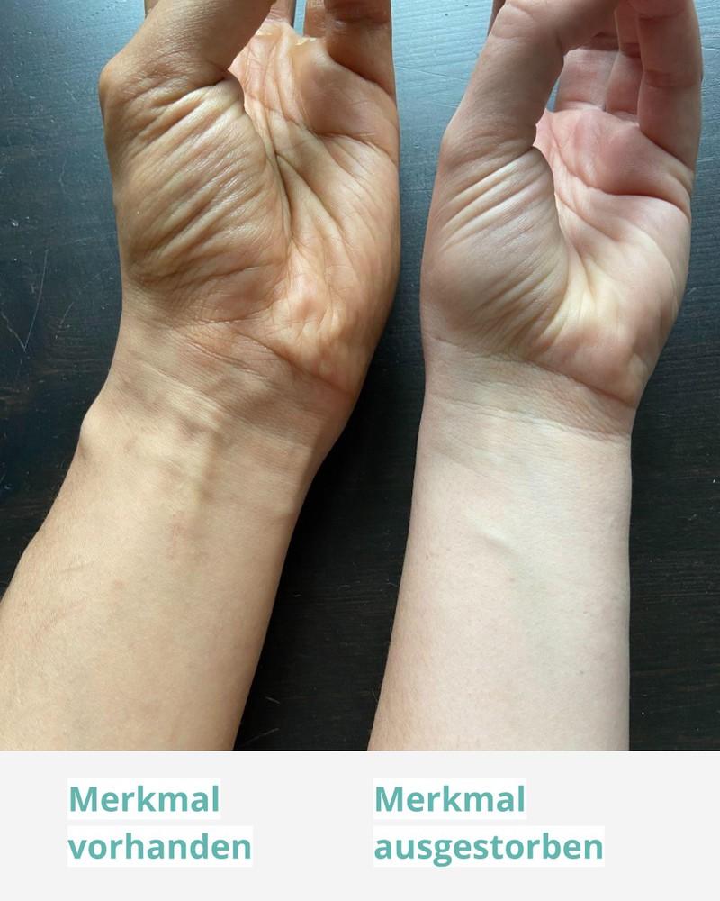 Der Hohlhandmuskel ist nur bei manchen Menschen noch vorhanden.