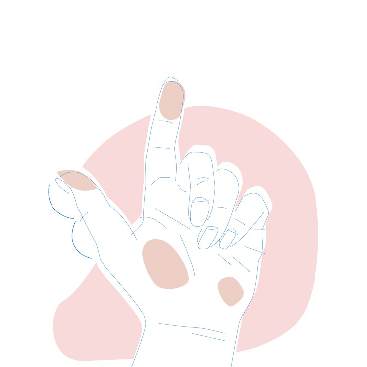 Dieses Bild zeigt eine Hand, bei der beide Hälften des Daumens gleich groß sind.
