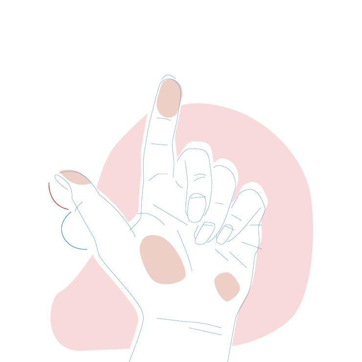 Dieses Bild zeigt eine Hand, bei der der untere Teil des Daumens größer ist als der obere.