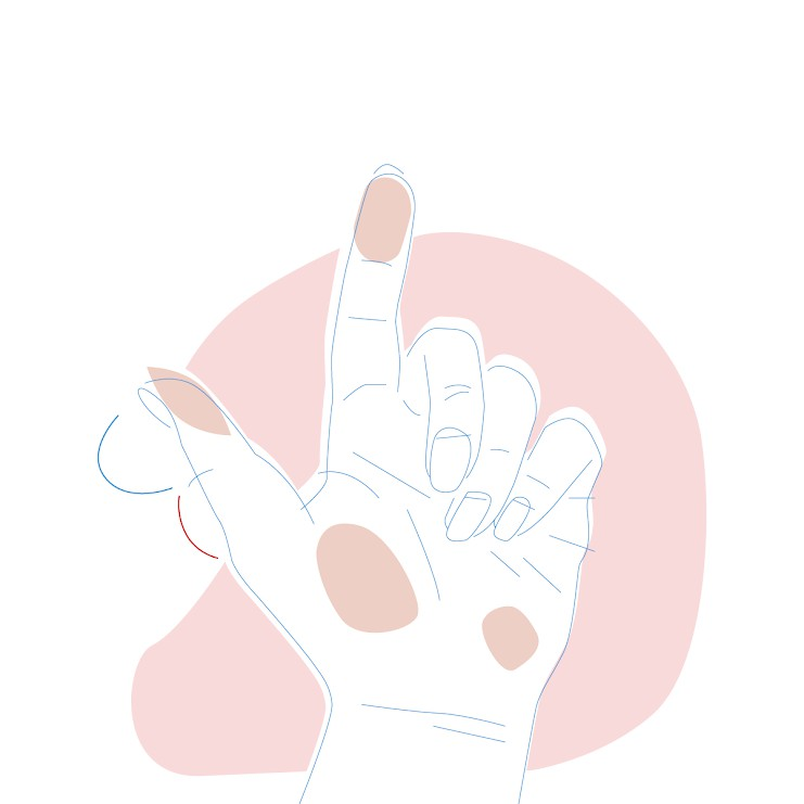 Dieses Bild zeigt eine Hand, bei der die untere Hälfte des Daumens kleiner ist.