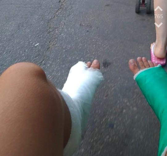 Jodler mit zwei gebrochenen Beinen