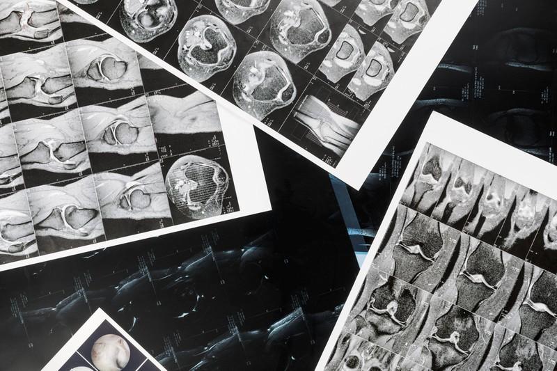 Aufnahmen aus der Radiologie