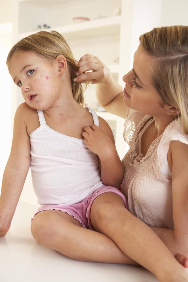 Ein kleines Mädchen, das Pocken im Gesicht hat.