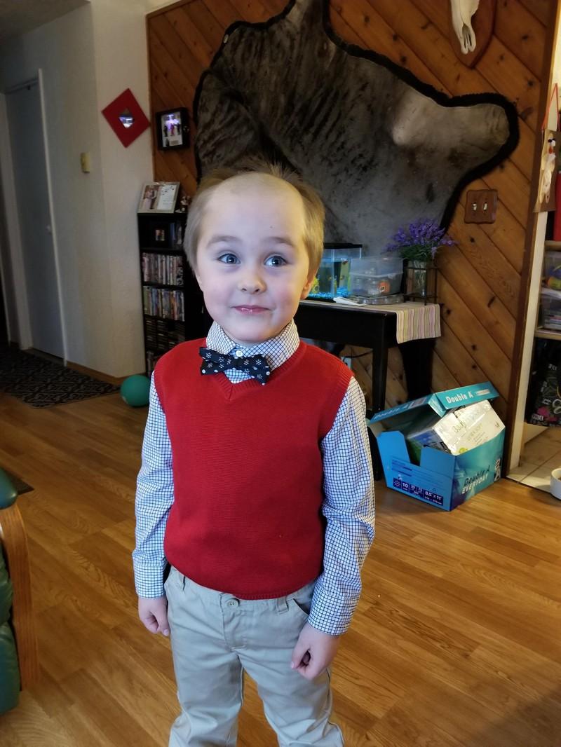 Der Junge sollte wohl in Zukunft besser den Friseur aufsuchen, als seine Haare selbst zu kürzen.