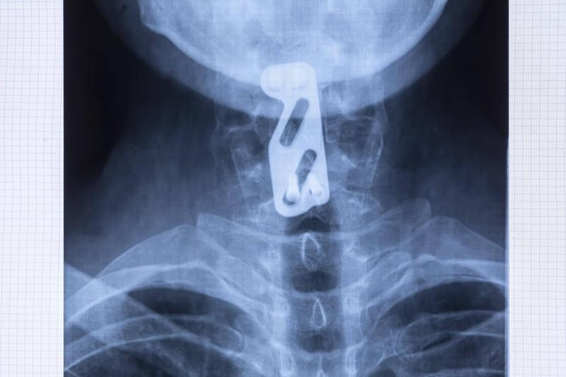 Die Röntgenaufnahme brachte etwas merkwürdiges zu Tage.