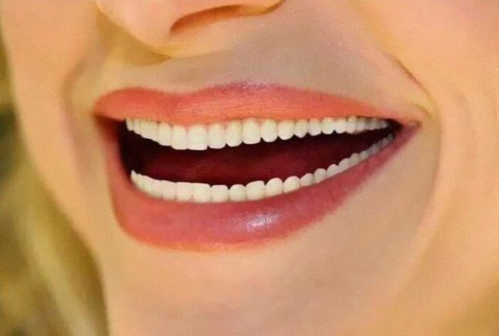 Das Foto ist ein Fail, weil sie sich zu viele Zähne gephotoshopt hat